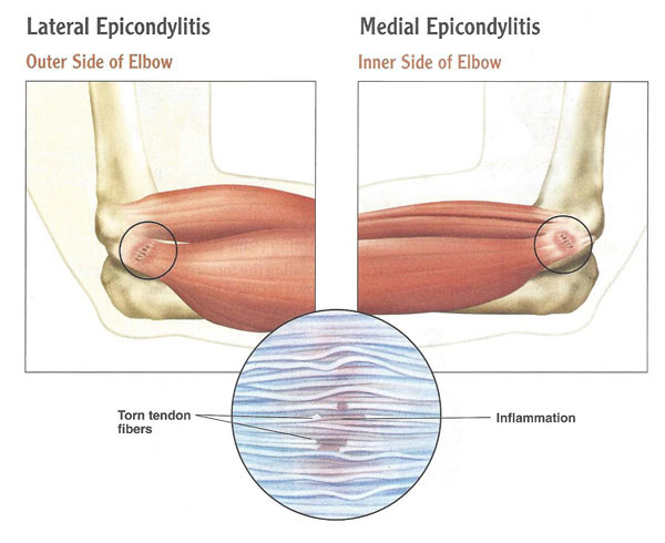 diagram of Epicondylitis