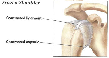 "frozen shoulder essay The effectiveness of trigger point therapy on the frozen shoulder travell and simons portrayed trigger points without exaggeration as the scourge of mankind (davies ""the frozen shoulder workbook"" 41)."